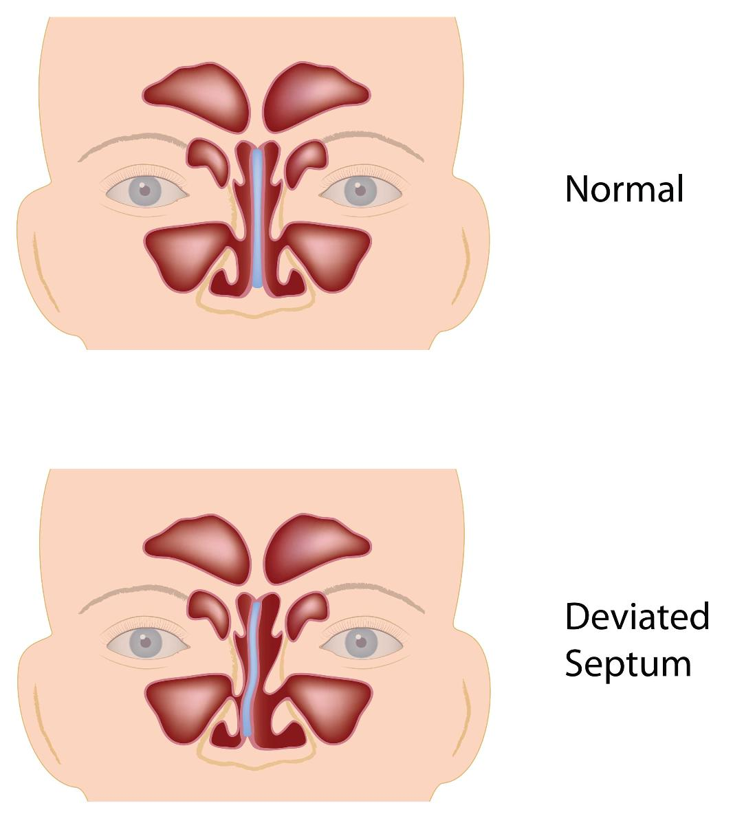 Deviated Septum Ears Diving Dan Health Diving