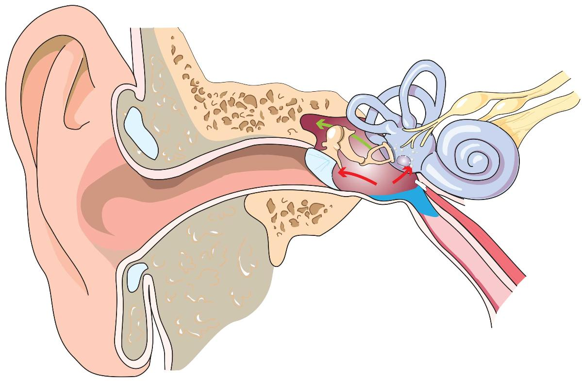 middle ear barotrauma on ascent ears diving dan health diving