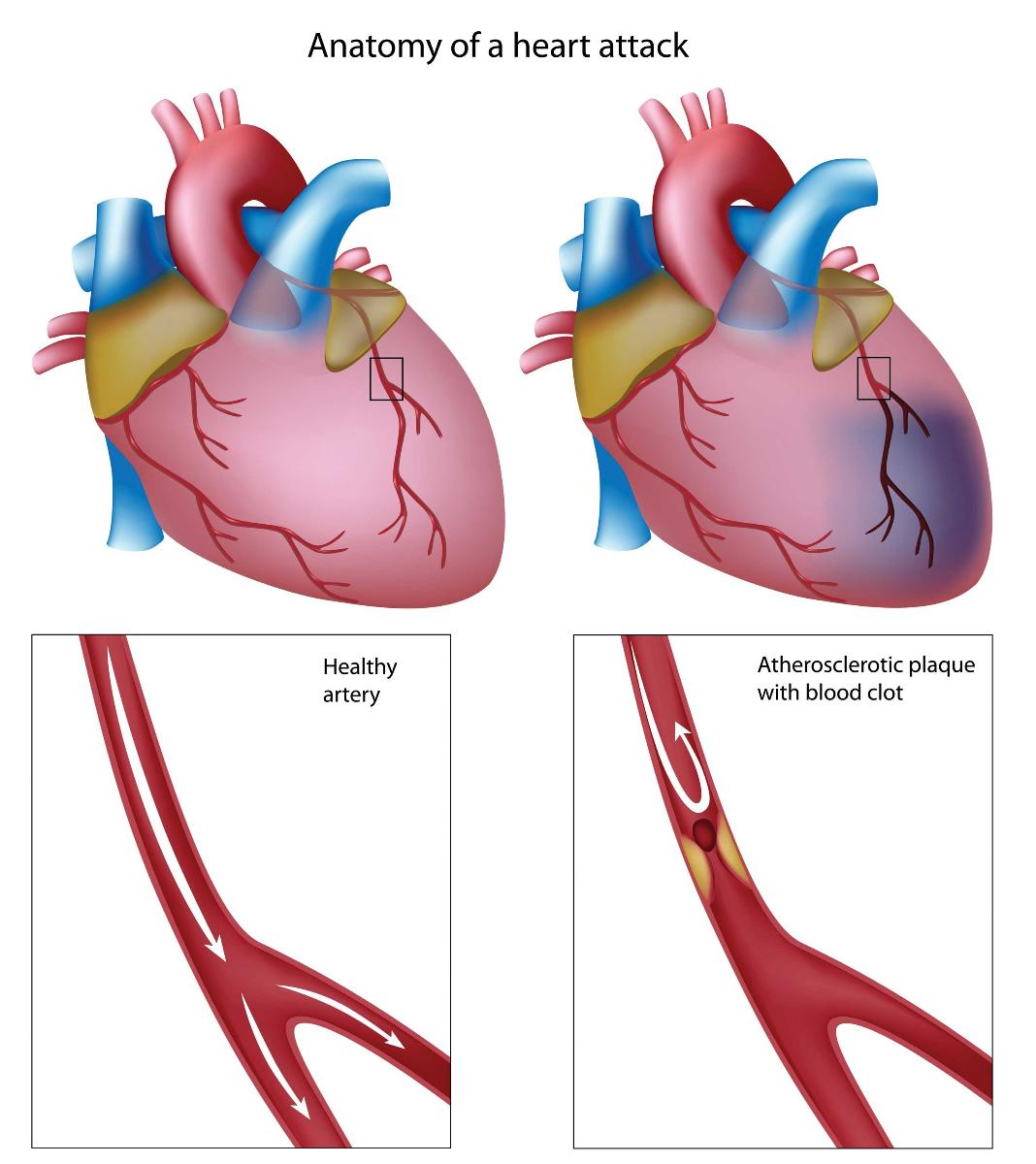 Myocardial Infarction The Heart Diving Dan Health Diving