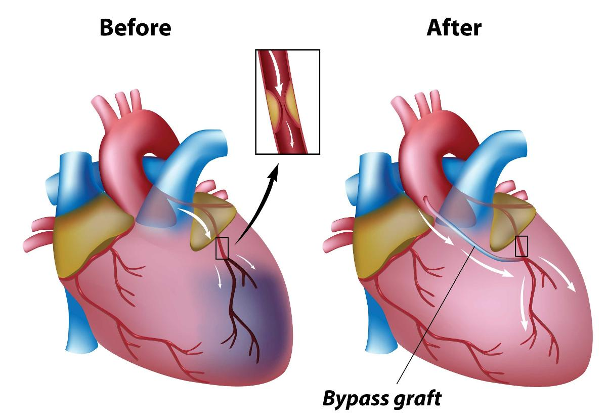 Issues Involving Coronary Artery Bypass Grafts The Heart Diving
