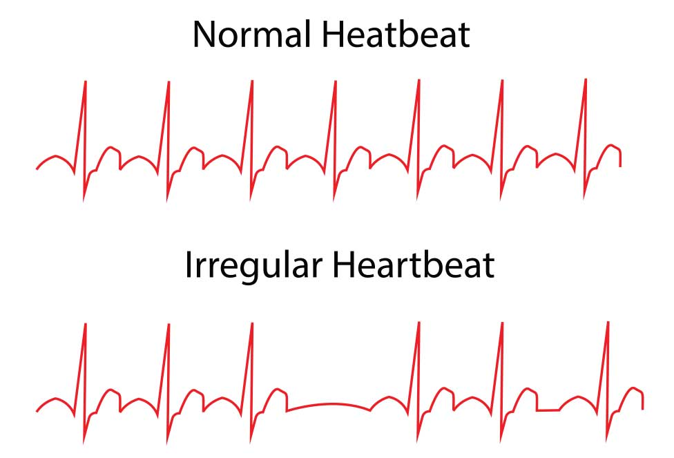 Overview Of Arrhythmias The Heart Diving Dan Health Diving