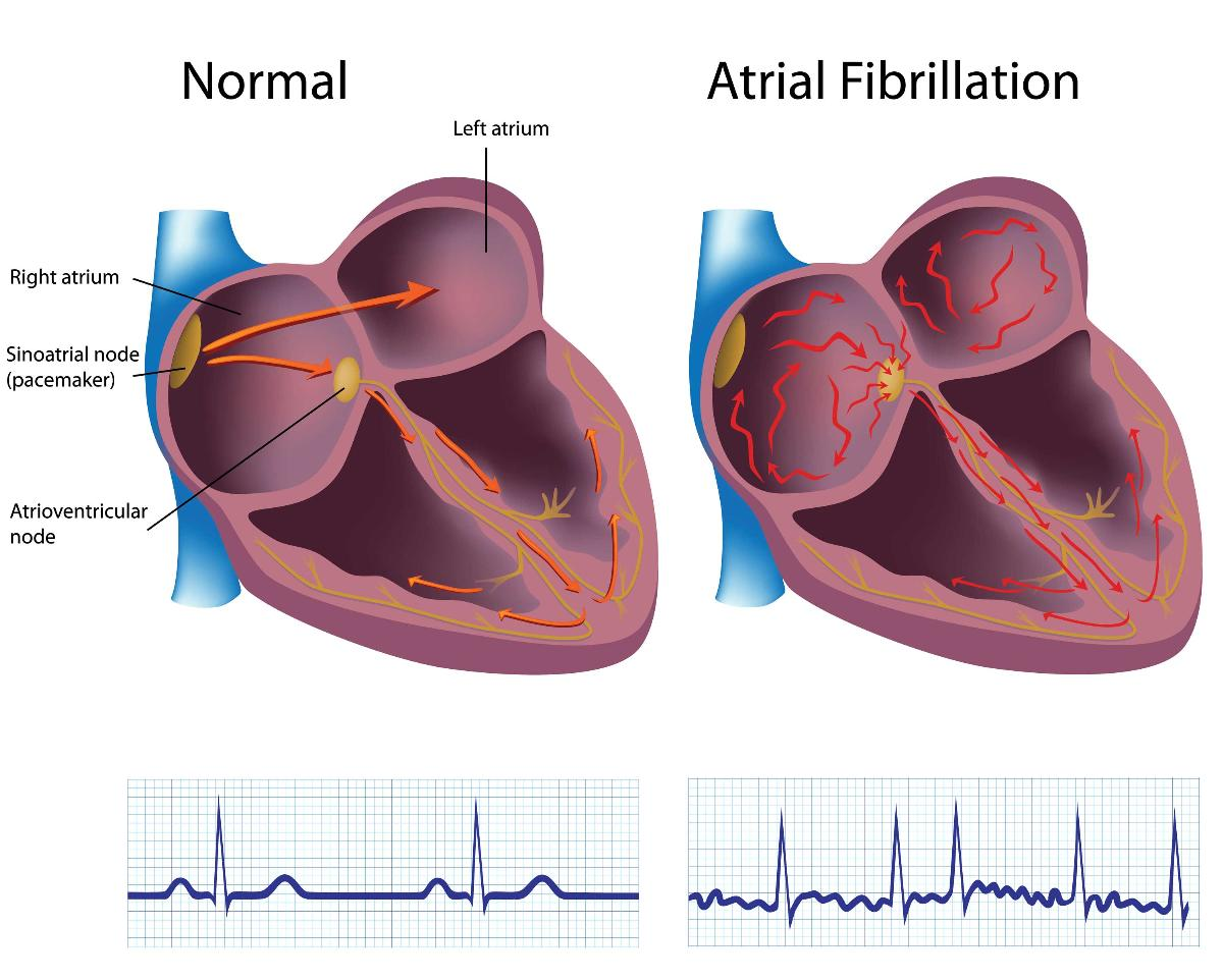 Atrial Fibrillation Led to Stroke: One Mans Story